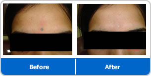 Dr pradyumna vaidya is well known skin specialist in pune for Tattoo removal service